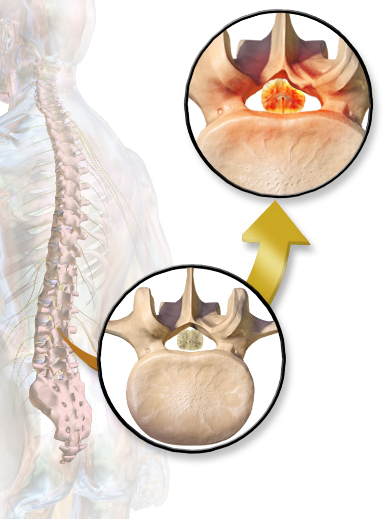 """Spinal Stenosis"" by BruceBlaus. When using this image in external sources it can be cited as:Blausen.com staff. ""Blausen gallery 2014"". Wikiversity Journal of Medicine. DOI:10.15347/wjm/2014.010. ISSN 20018762. - Own work. Licensed under CC BY 3.0 via Commons - https://commons.wikimedia.org/wiki/File:Spinal_Stenosis.png#/media/File:Spinal_Stenosis.png"