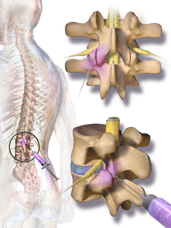 Facet Joint Injection / Medial Branch Nerve Block