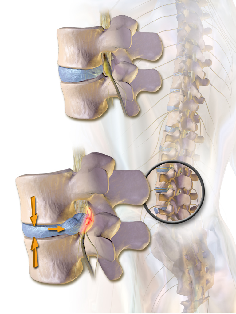 """Herniated Disc"" by BruceBlaus. When using this image in external sources it can be cited as:Blausen.com staff. ""Blausen gallery 2014"". Wikiversity Journal of Medicine. DOI:10.15347/wjm/2014.010. ISSN 20018762. - Own work. Licensed under CC BY 3.0 via Commons - https://commons.wikimedia.org/wiki/File:Herniated_Disc.png#/media/File:Herniated_Disc.png"